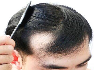 एम्स का अध्ययन:कोरोना से रिकवर हुए 28 फीसदी लोगों को बाल झड़ने की समस्या