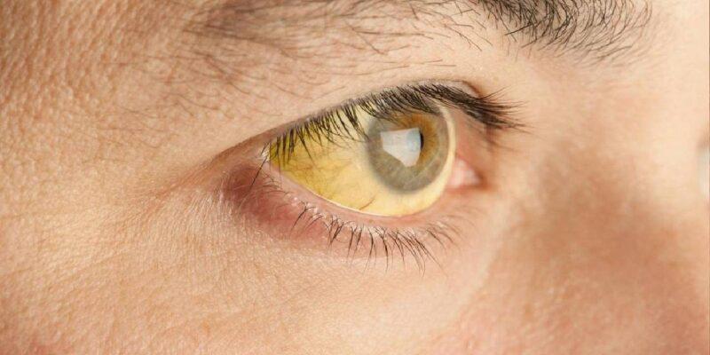 Video: आखिर क्यों होता है पीलिया, इन लक्षणों को नजरअंदाज किए तो भुगतना पड़ सकता है गंभीर परिणाम