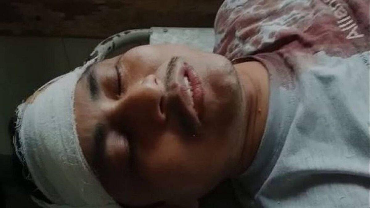 West Bengal Violence: उपचुनाव के पहले कूचबिहार में हुई बमबारी, सीताई में BJP कार्यकर्ता के साथ हुई मारपीट, फटा सिर